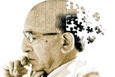 Alzheimer nedir belirtileri nelerdir ? İşte dikkat etmeniz gerekenler..