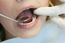 20'lik diş çekimi nasıl yapılır gömülü tedavisi!