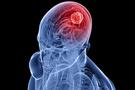 Psikiyatrik tedavide yeni dönem: Beyin Check-up!