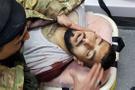 Afrin operasyonunda ÖSO ilk şehidini verdi