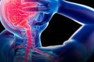 Fibromiyalji nedir tedavisi var mı? Kadınlarda 3 kat daha...