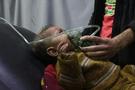 UCM kimyasal saldırıda BM'yi adres gösterdi