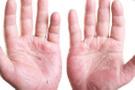 Uzmanlar uyardı egzama kalp hastalıklarını tetikleyebilir