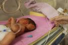 Kafasında kitleyle doğan bebek hakkında yeni gelişme