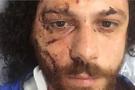 Ünlü oyuncu Oral Özer bar saldırısında hastanelik oldu