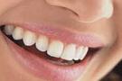 Dişlerinizi beyazlatmak için ne yapmalısınız?