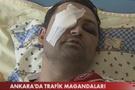 Magandalar TRT çalışanını dövdüler