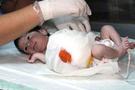Bu bebek organları dışarıda doğdu