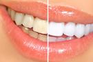 Diş beyazlatma yöntemleri...