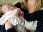 Gözsüz bebek doğdu mucize bebeğin sırrı