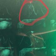 Fulden Uras kanser ameliyatında! Çıplak pozları bilinirdi iyilik meleği çıktı