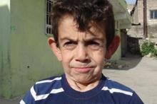 8 yaşındaki Mehmet'in yürek burkan dramı