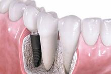 Diş implantları nasıl uygulanır?