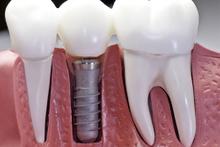 Diş implantları pahalı mı? Neden pahalı?