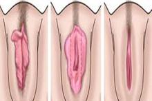 Labioplasti 'iç dudak estetiği'