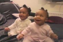 Milyonlar bu ikizleri izledi