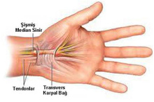 Karpal tünel sendromu tedavisi