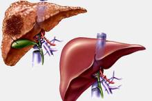 Karaciğer yetmezliğine çare: Karaciğer nakli