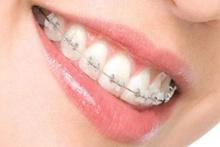 Ortodontik tedavi süreci nasıl başlar?