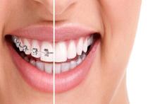 Kişiselleştirilmiş ortodontik tedavi nedir?