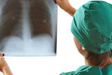 Akciğer kanserine erken tanı konulabilir mi?