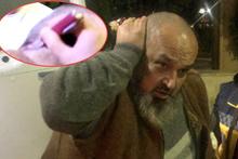 Başına saplı bıçakla hastaneye getirildi