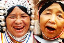 Hayatları boyunca diş macunu görmemişler inanılmaz!
