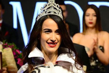 Güzellik kraliçesi Sibel Demiralp kalp krizi geçirdi son durumu