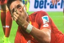 Hoffenheim'da Sandro Wagner'in işaret parmağı ortadan ikiye kırıldı