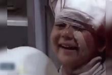 Bombardımandan kurtulan minik kız böyle gülümsedi