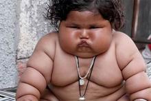 Hindistan'da 17 kilo ağırlındaki 8 aylık bebek