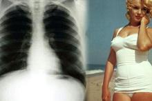 Göğüs röntgenini satışa çıkardı böyle fiyat görülmedi