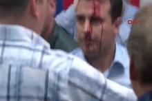 Türkiye'den bu görüntülere sert tepki! 'Kaygı duyuyoruz'