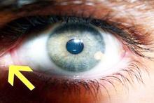 Üçüncü bir gözünüz olduğunu biliyor muydunuz?