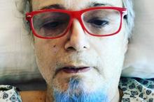 Harun Kolçak hastaneye yattı son durumu ne?
