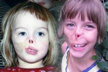 Akıl almaz kaza ufacık kızın yüzünü bu hale getirdi inanılmaz!