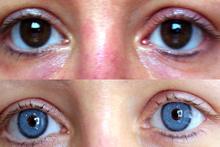 Göz rengi değiştirme ameliyatı az daha kör ediyordu