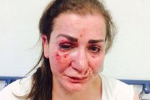 Almanya'da Türk kadına tramvayda vahşi saldırı! Örtbas mı ediliyor?