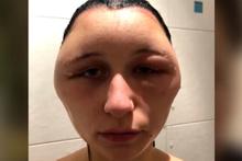 Saç boyası genç kızı öldürüyordu yaşadıkları şeyler ve görüntüsü korkunç