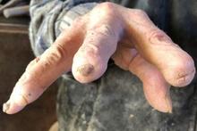 72 yıldır ürettiği fıçılar yüzünden elleri bu hale geldi!