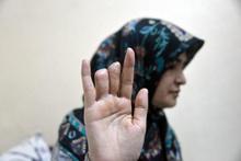 Parmakları koptu hastanede kayboldu