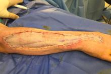 Et yiyen bakteri kolunu yiyor 1 haftada kolunun yarısı gitti