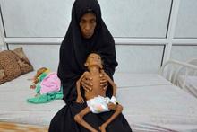 Yemen açlıktan ölüyor çocuklar bir deri bir kemik son duruma bakın