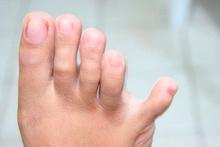Ayak parmaklarınız böyleyse dikkat