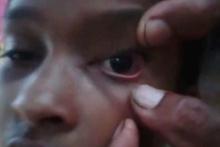 Kulaklarından giren karıncalar gözlerinden çıkıyor