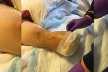 Kazada kopan bacağını pişirip yedi arkadaşlarına ziyafet verdi!