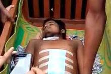 Korkunç olay! Karın ağrısıyla gittiği hastanede organları çalındı!