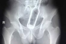 Röntgende her şey görüntülendi! İçine soktuğu şişe mideden çıktı