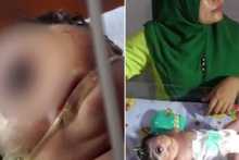 Tek gözlü doğan bebek görenleri şok etti!