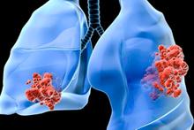 Akciğer kanserinin ilk evre belirtilerine dikkat!